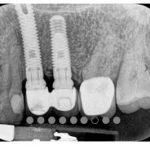 implante-regeneracion