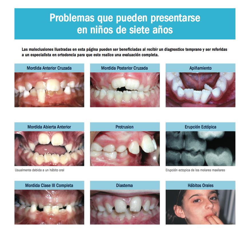 llevar al niño al ortodoncista