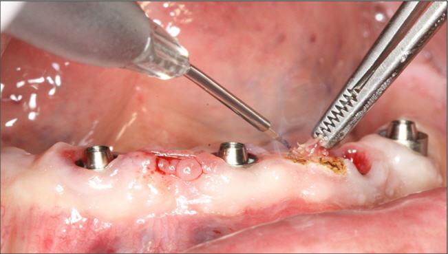 Láser-diodo-periodoncia-clinica-dental-sevilla