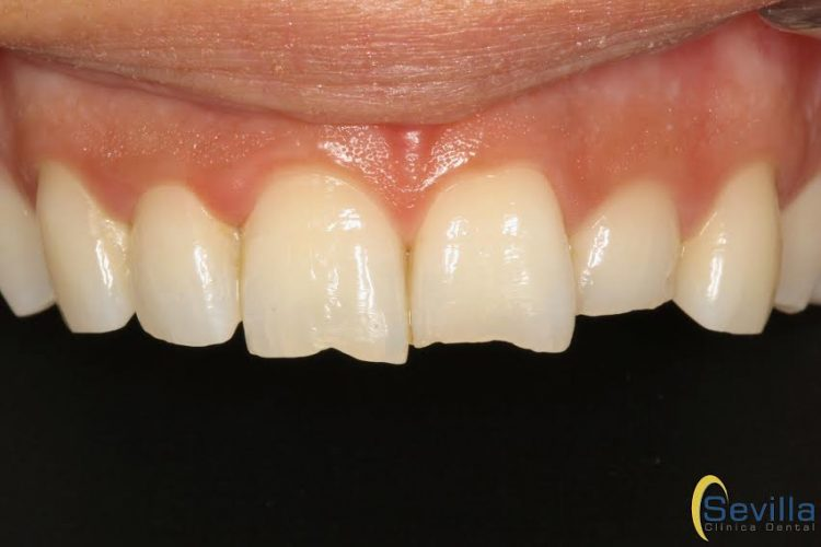 estetica-dental-en-leon-minimamente-invasiva
