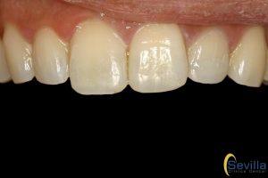 estetica-dental-leon-minimamente-invasiva-despues-