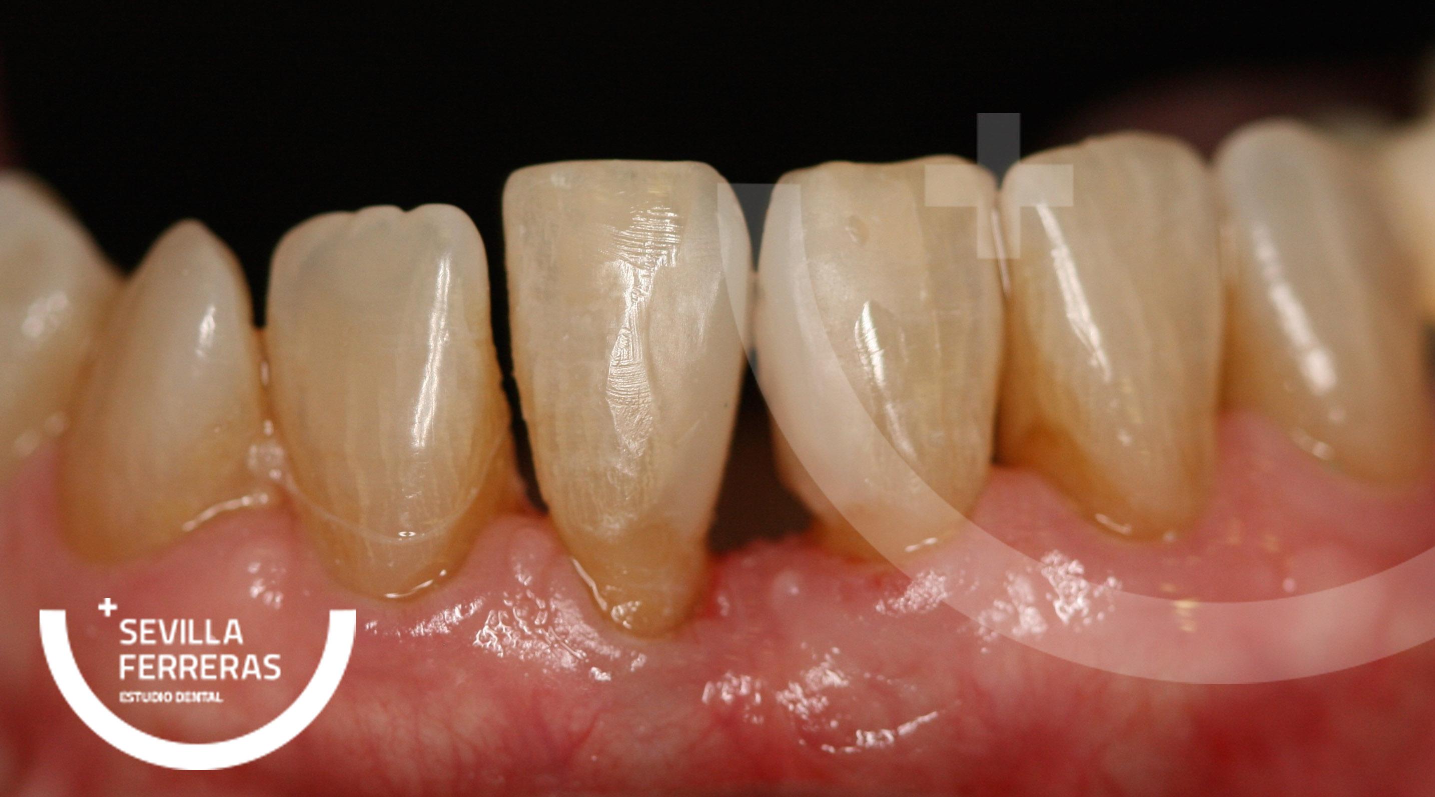 cierre-de-diastemas-odontologia-minimamente-invasiva-en-leon