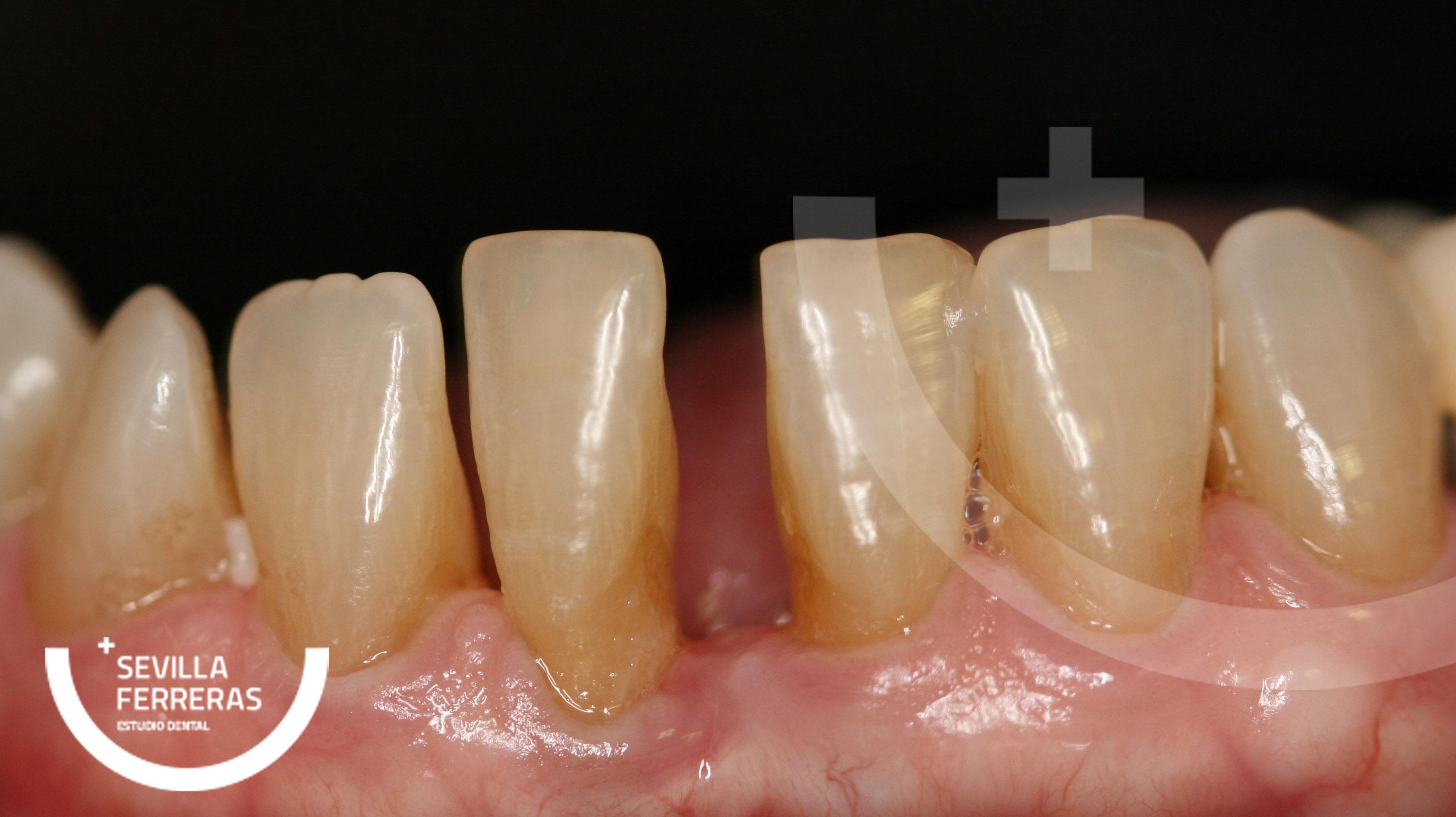 cierre-de-diastemas-odontologia-minimamente-invasiva-leon