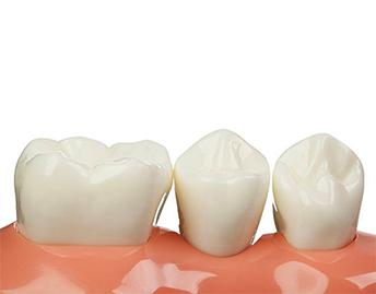 protesis_fija_sobre_dientes_naturales