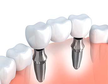 protesis_sobre_implantes