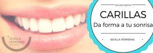 carillas dentales en Leon