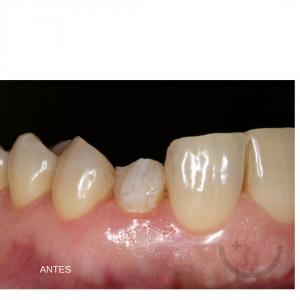 Carillas dentales en Leon - antes