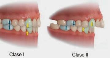 Casos para el uso de aparatologia funcional en ortodoncia