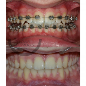 brackets autoligables en leon