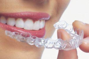 ortodoncia-transparente-alineadores