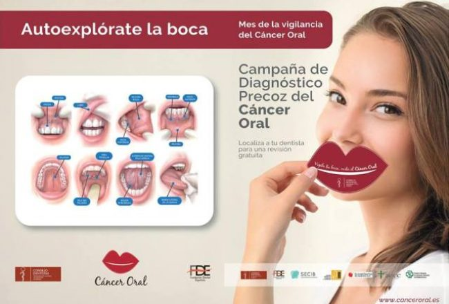 cartel-2018-deteccion-precoz-del-cancer-oral-leon