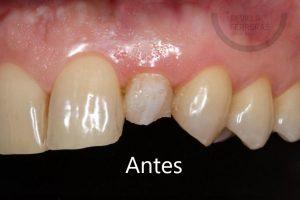 carillas-dentales-de-composite-en-leon-antes-estudio-dental-sevilla-ferreras