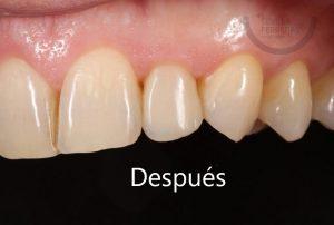 carillas-dentales-de-composite-en-leon-despues-estudio-dental-sevilla-ferreras