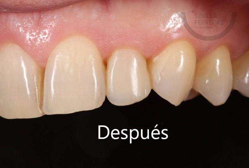 carillas-dentales-de-composite-en-leon-despues-estudio-dental-sevilla-ferreras