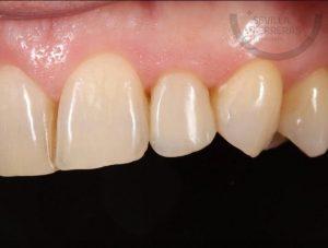 carillas-dentales-de-composite-en-leon-estudio-dental-sevilla-ferreras
