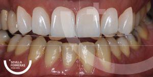 despues-del-tratamiento-de-diseo-de-sonrisa-en-leon-estudio-dental-sevillla-ferreras