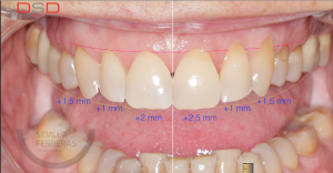 dsd-diseno-de-sonrisa-digital-proceso-final-en-paciente-en-len-edsf