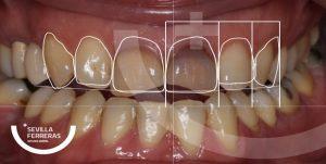 durante-el-tratamiento-de-diso-de-sonrisa-en-leon-estudio-dental-sevillla-ferreras