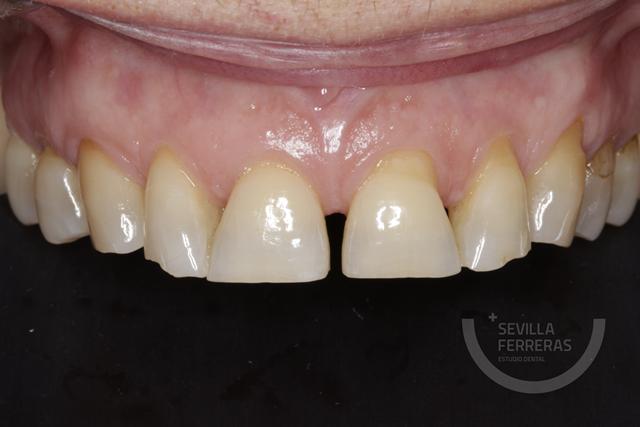 mock-up-previo-dentista-len