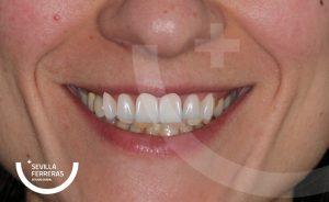 paciente-real-de-diseo-de-sonrisa-en-len-estudio-dental-sevillla-ferreras