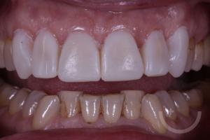 mock-up-intermedio-estudio-dental-sevilla-ferreras-en-leon