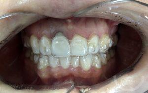 ortodoncia-invisible-en-leon-estudio-dental-sevilla-ferreras-caso-1