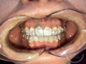 ortodoncia-invisible-en-leon-estudio-dental-sevilla-ferreras-caso-2