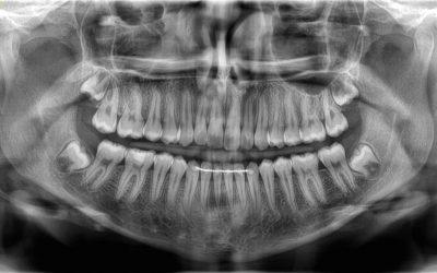 tac-dental