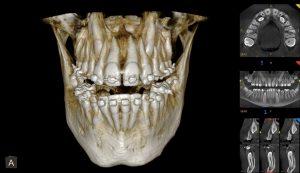 tac-dental-ortodoncia